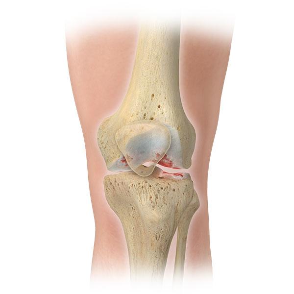 Knee Lemak Health